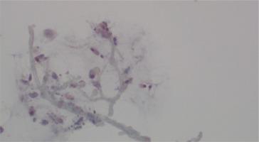 http://www.pneumon.org/f/fulltexts/135957/PNE-34-4-g002_min.jpg