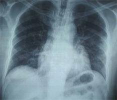 http://www.pneumon.org/f/fulltexts/136001/PNE-34-5-g004_min.jpg