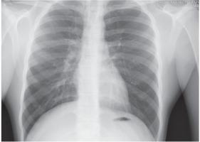 http://www.pneumon.org/f/fulltexts/136153/PNE-34-3-g004_min.jpg